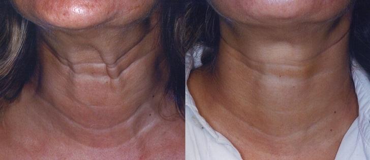 Ваша шея больше не выдаст возраст: Четыре рецепта для подтяжки шеи
